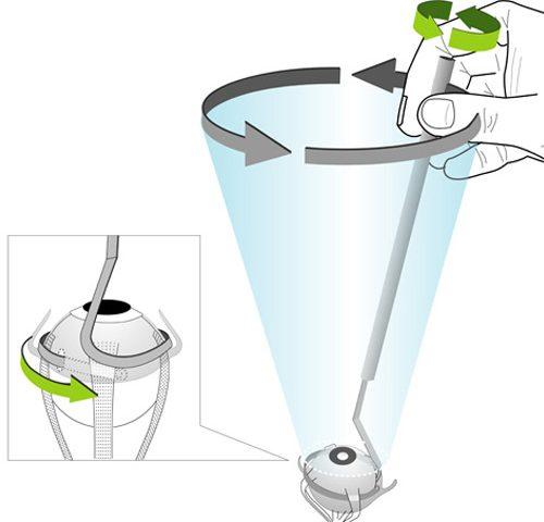 Patente método quirúrgico